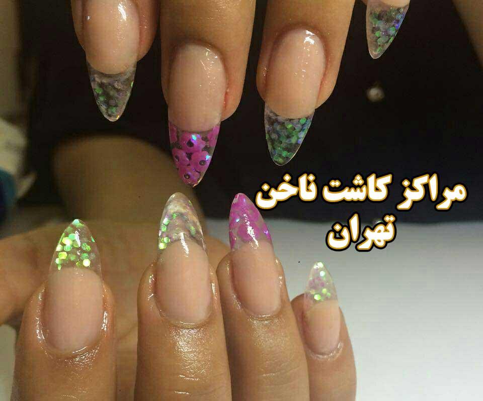خدمات کاشت ناخن غرب تهران